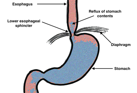 Reflux of Stomach Contents, Gastroeophageal reflux,