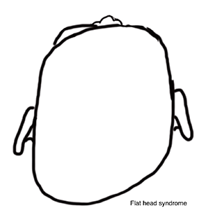 Flat Head syndrome