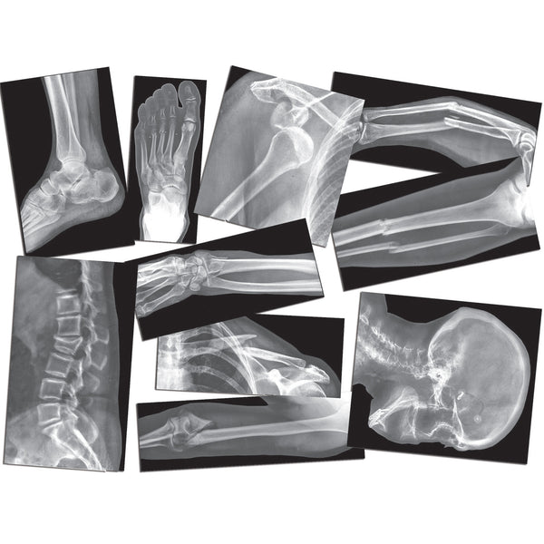 BROKEN BONES X-RAYS - See what the Doctors see!