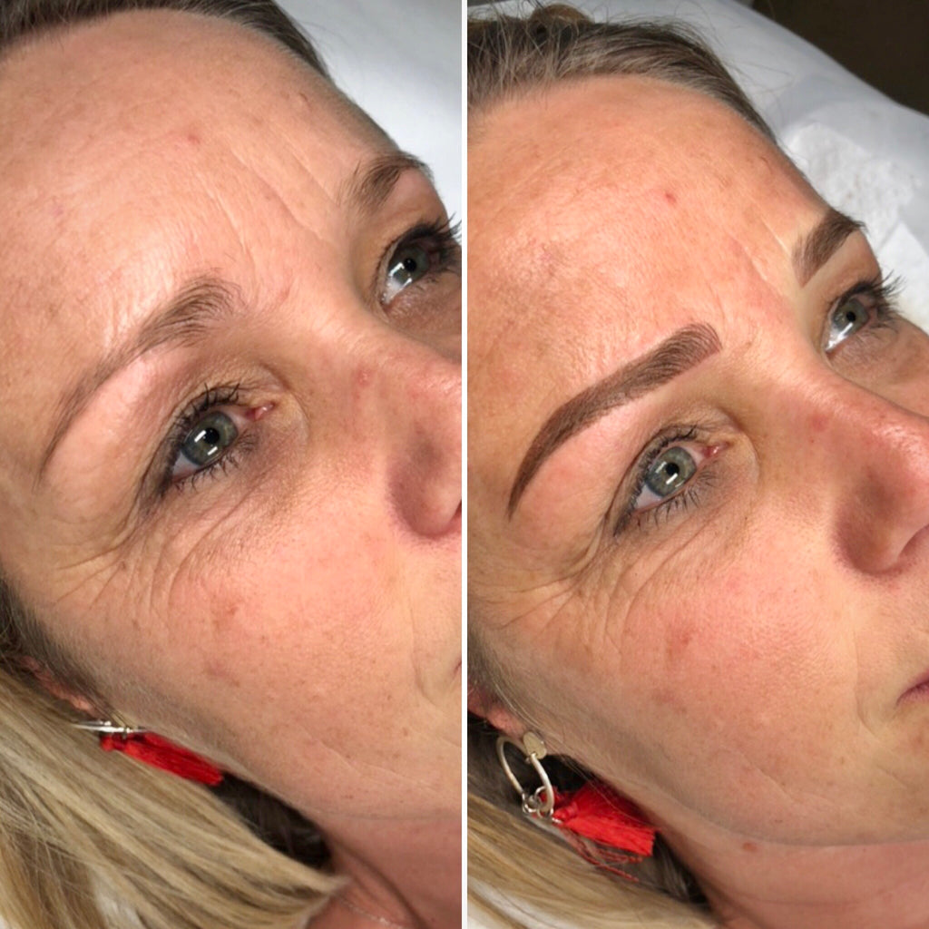 Combination Brows Before After