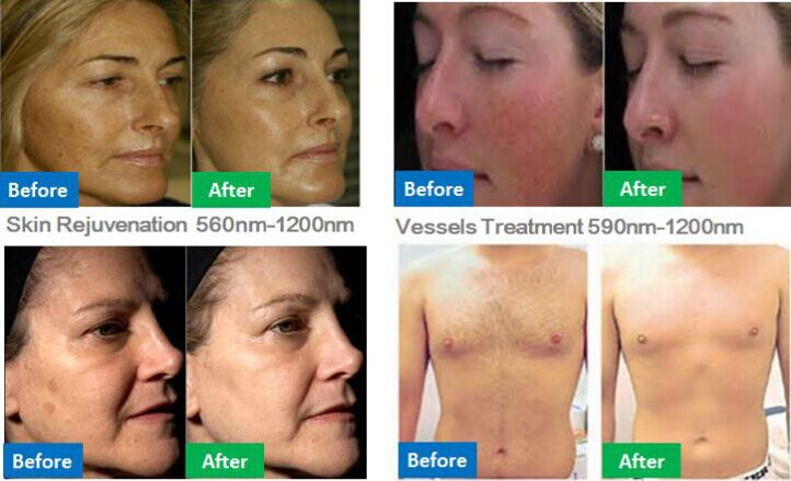 Embrayce beauty and Medispa Christchurch SHR IPL rejuvenation freckle removal