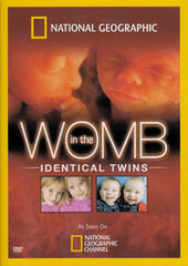 In the Womb: Identical Twins (National Geographic)