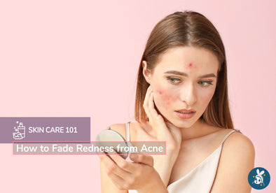 Skincare 101: How to Fade Redness from Acne