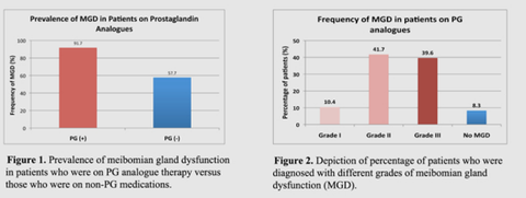 MGD in cases of glaucoma medication