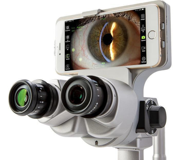 Marco Ion Imaging System - Optics Incorporated