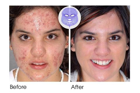 befor and after skin therapy