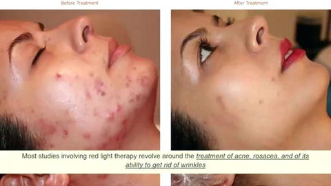 red-led-light-therapy-treatment-reviews-before-and-after