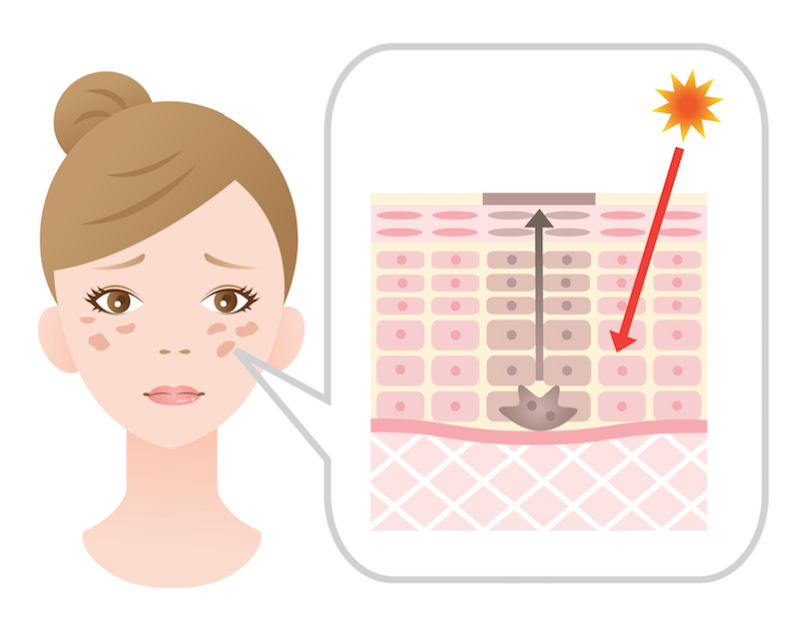 Post-Summer Dark Spots, And How To Get Rid Of Them Fast!