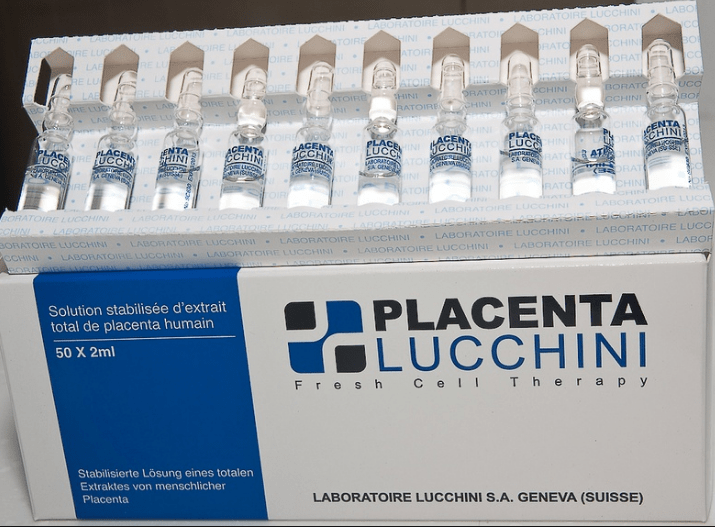 Placenta  Lucchini IV - Simple Mello