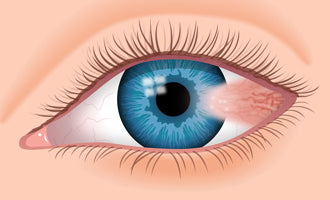 An Eye Condition to Watch Out For