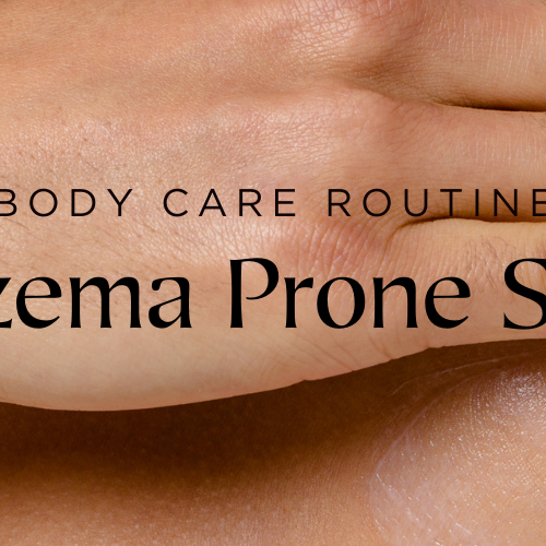 Skin Care Routines for Eczema-Prone Skin