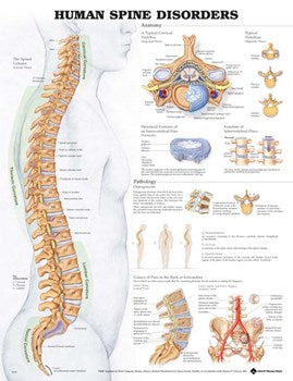 "ANAT Chart, Human Spine Disorders, Laminated, 20""x26"""