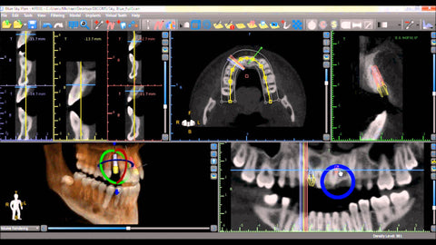 SOFTWARE TRAINING FOR PLANNING SURGICAL GUIDE