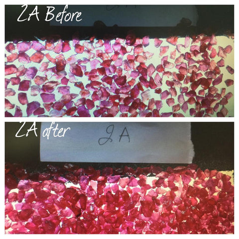 Ruby treatment before and after