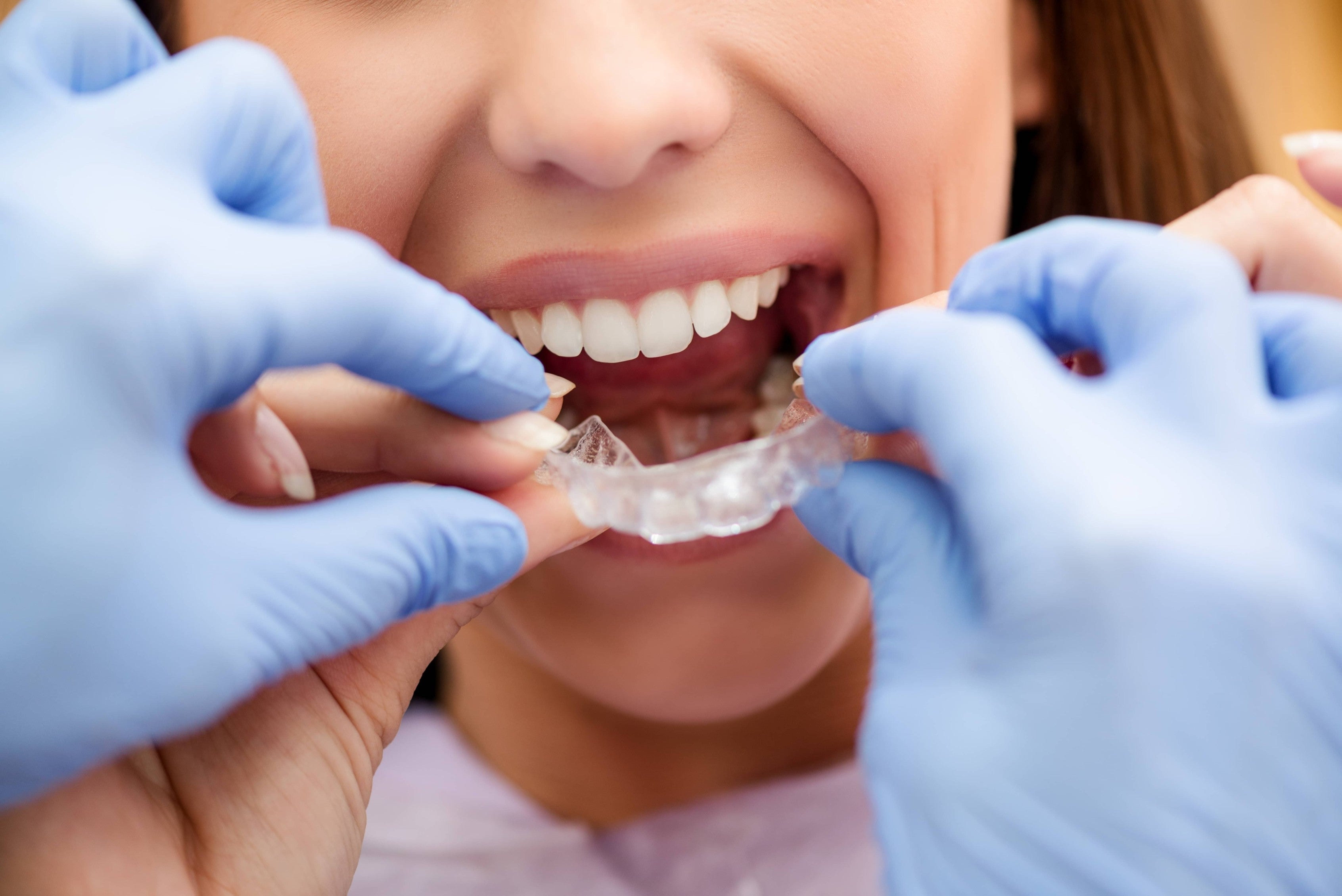 Woman being but a mouth guard on