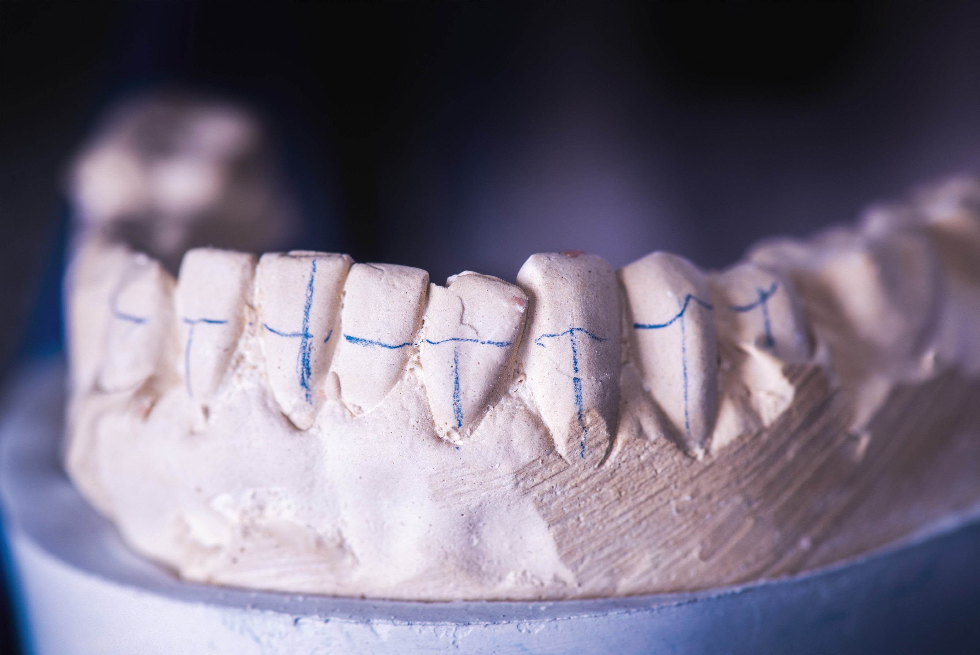 Clay mold of a dentition