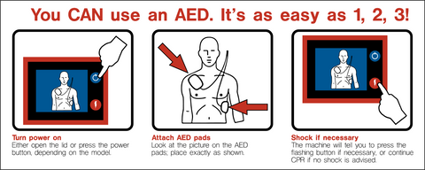 how to use aed An aed is an automated external defibrillator it is a portable, simple to use,  computerised device that can be used by anyone when someone suffers a  sudden.