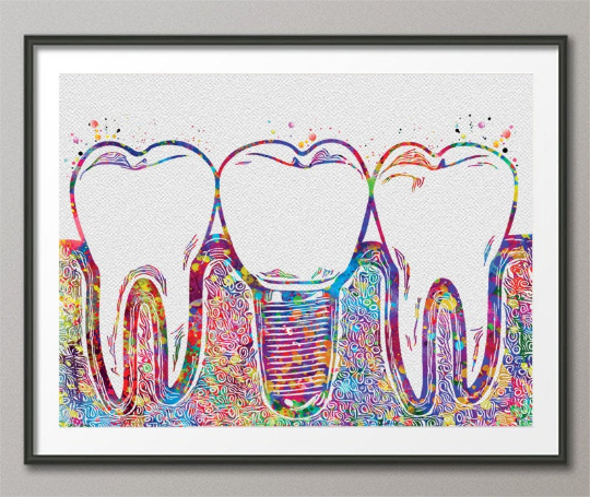 Dental Implant Art Watercolor Print Tooth Anatomical Dental Clinic Decor Dentistry Student Science Graduaiton Dentist Gift Doctor Art-238 - CocoMilla