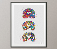 Alzheimers Disease Watercolor Print Medical Art Science Art Wall Decor Wall Art Neurology Human Brain Neurologist Science Wall Hanging-1642 - CocoMilla