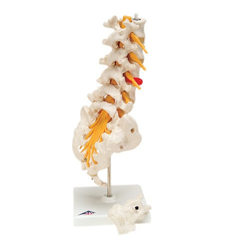 Anatomical Model - Lumbar Spinal Column with Dorso-Lateral Prolapsed Disc