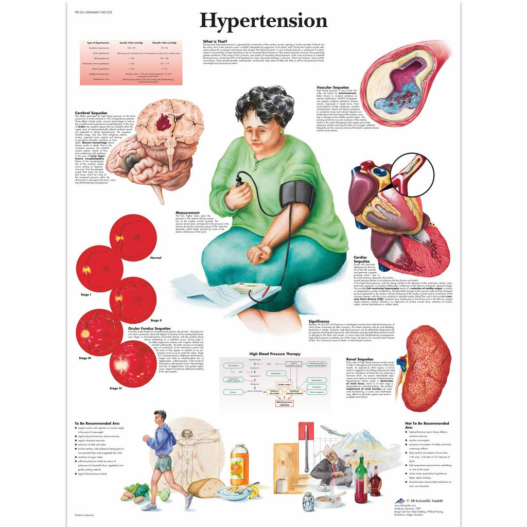 Hypertension Anatomical Chart