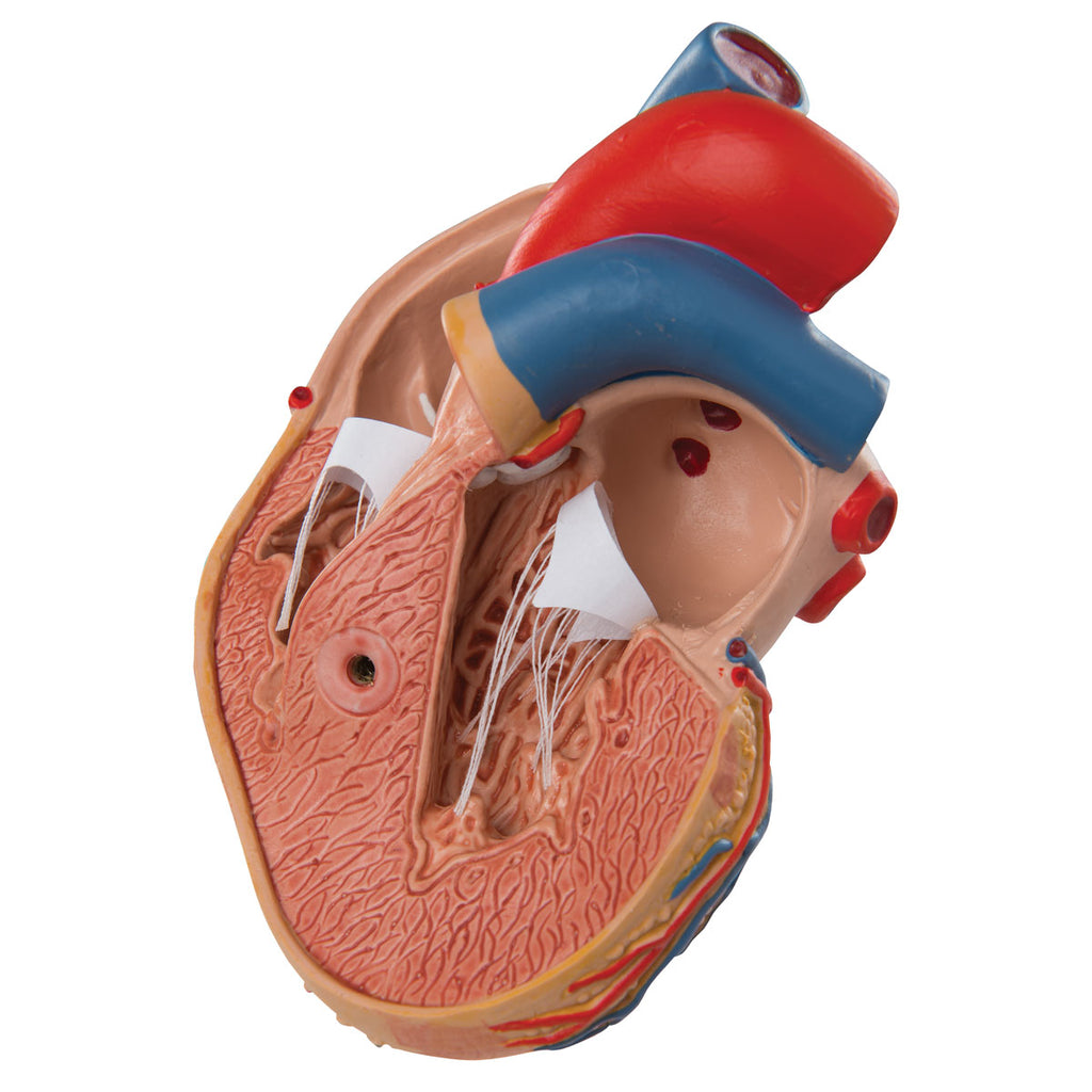 Heart Model with Left Ventric Hypertrophy