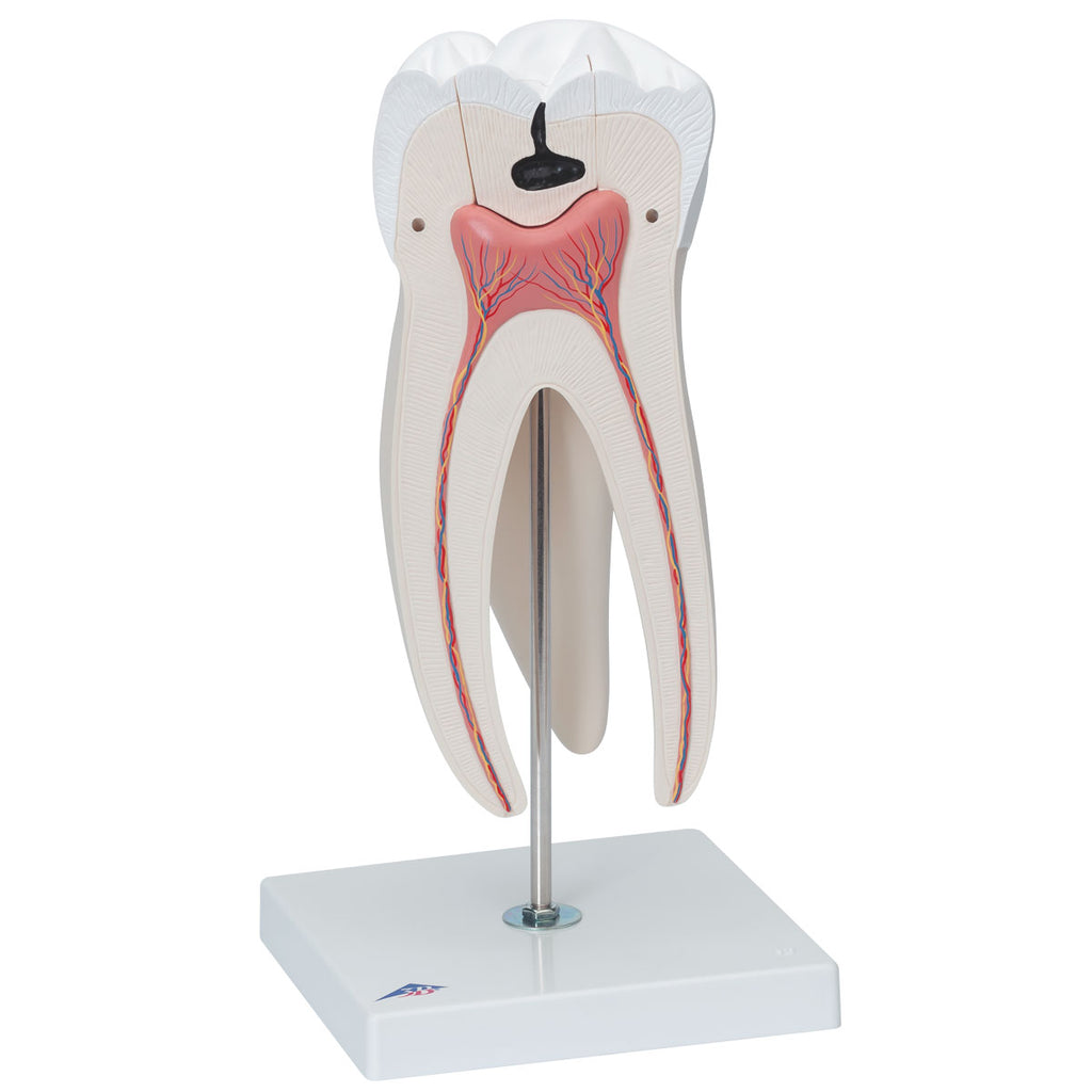 Giant Molar with Dental Cavities 15x life-size 6-part