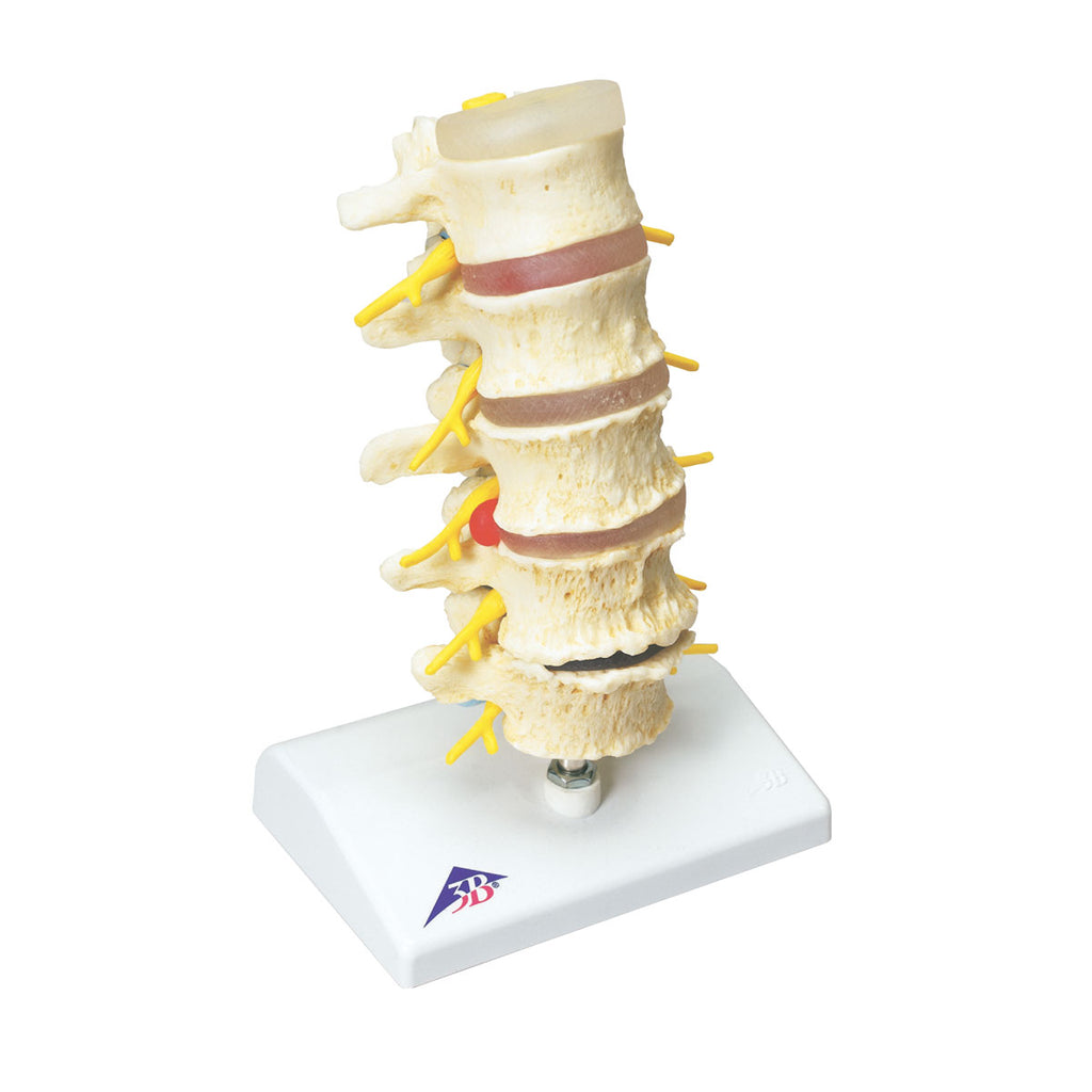 Stages of Prolapsed Disc Degeneration of Vertebrae Model