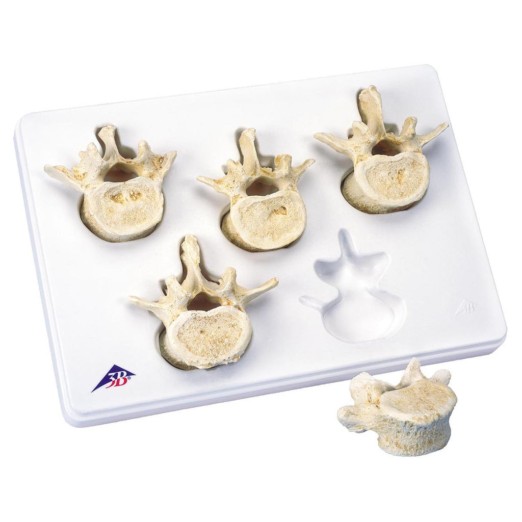Set of 5 Lumbar Vertebrae Anatomical Model