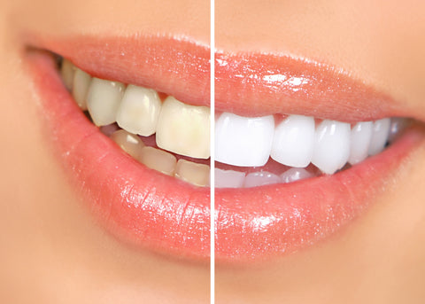 New Bright White Smile USA Made, FDA Compliant Teeth Whitening Kits, Before & After Picture