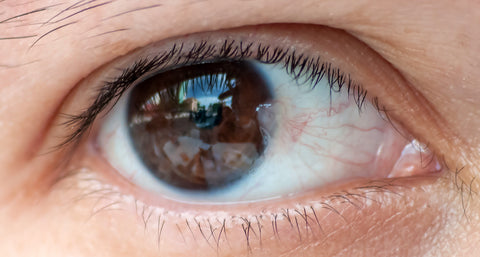 What is Pterygium (conjunctiva)?