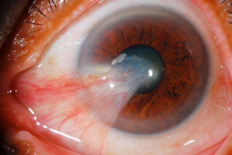 What is Pterygium of the eye? Large pterygium