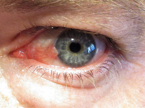 What is pterygium of the eye? Eye disease Australia