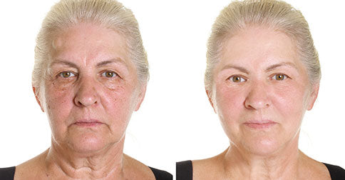 Why We Don't Show Before & After Photos for Anti-Aging Products (& What We Do Instead)