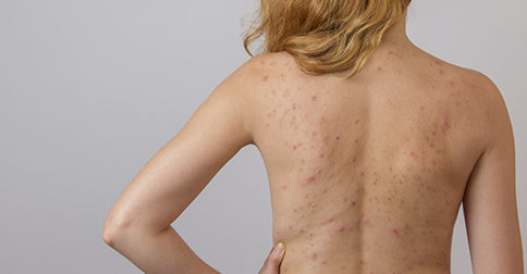 Chest Acne Back Acne And More How To Get Rid Of Body Acne Drmtlgy