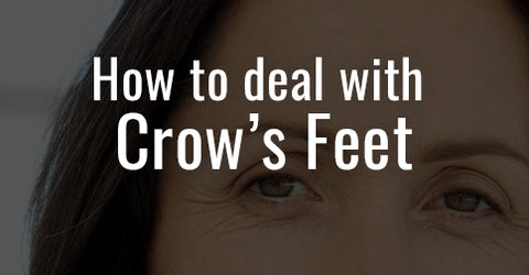 How to deal with Crow's Feet