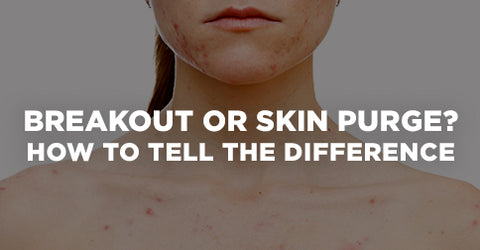 Skin Purging or Breakout
