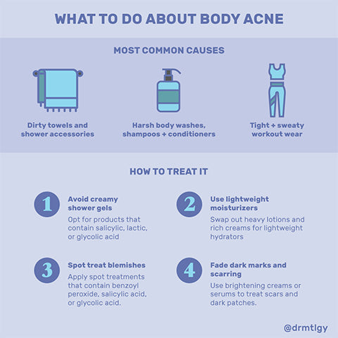 What to do about body acne