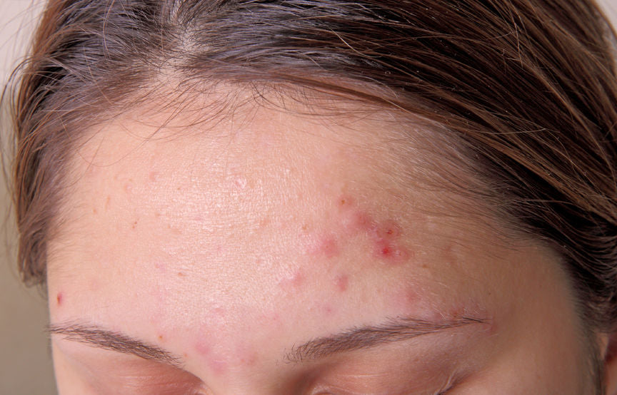 5 Ways to Get Rid of Adult Acne