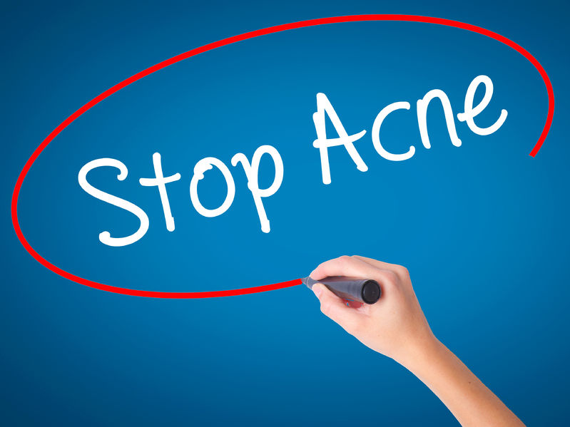Question & Answer: Acne and Aging