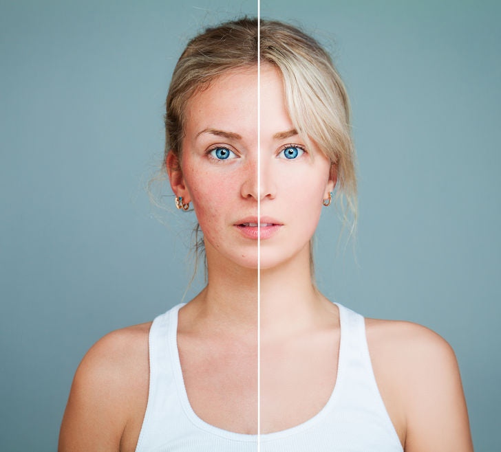 Question and Answer: Any Rosacea Tips?