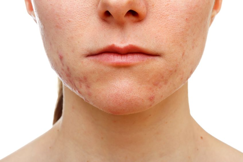 5 No-Nonsense Tips for Reducing Acne Breakouts
