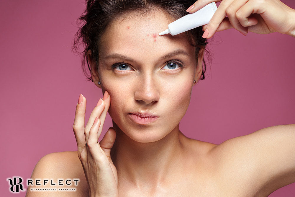 When it Comes to Acne Treatment, Reflect Personalized Skin Care Cares About it All!