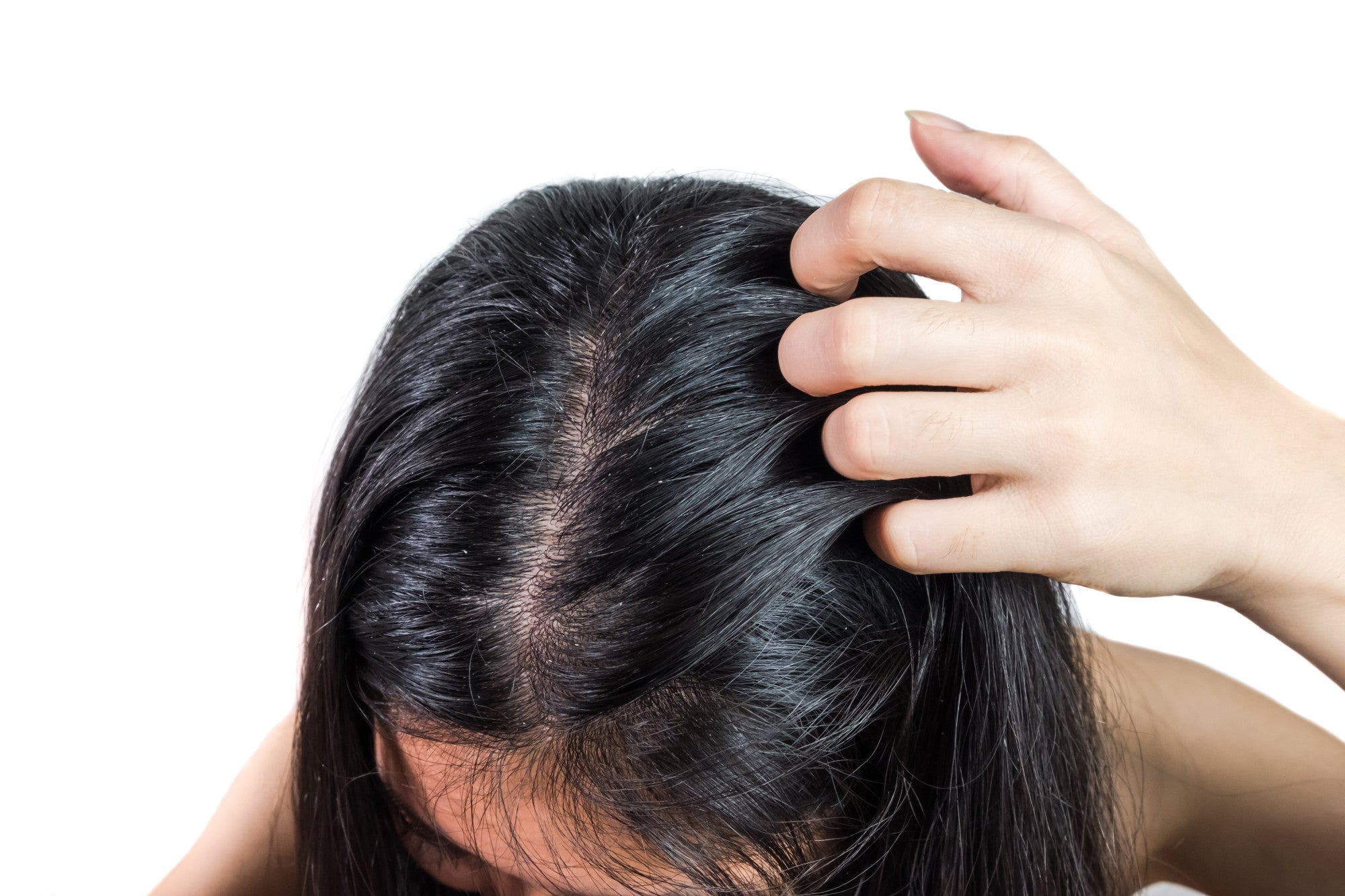 Flake Off: 9 Natural Remedies for Dandruff That Actually Work