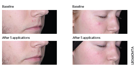 Acne Spot Treatment before and after