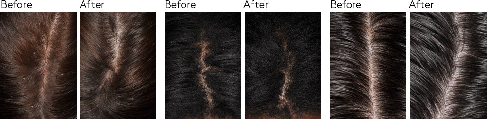 dandruff study before and after