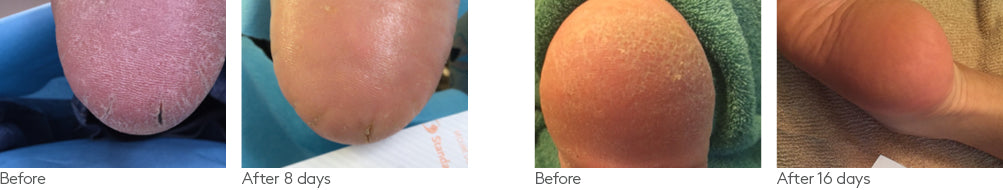 Foot gel clinical study before after