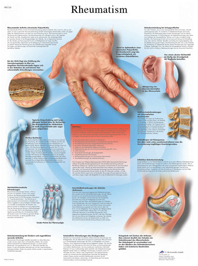 Anatomical Chart - rheumatic diseases, paper
