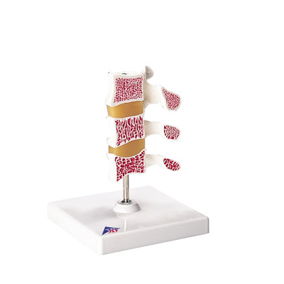 Anatomical Model - Deluxe Osteoporosis Model (3 Vertebrae)