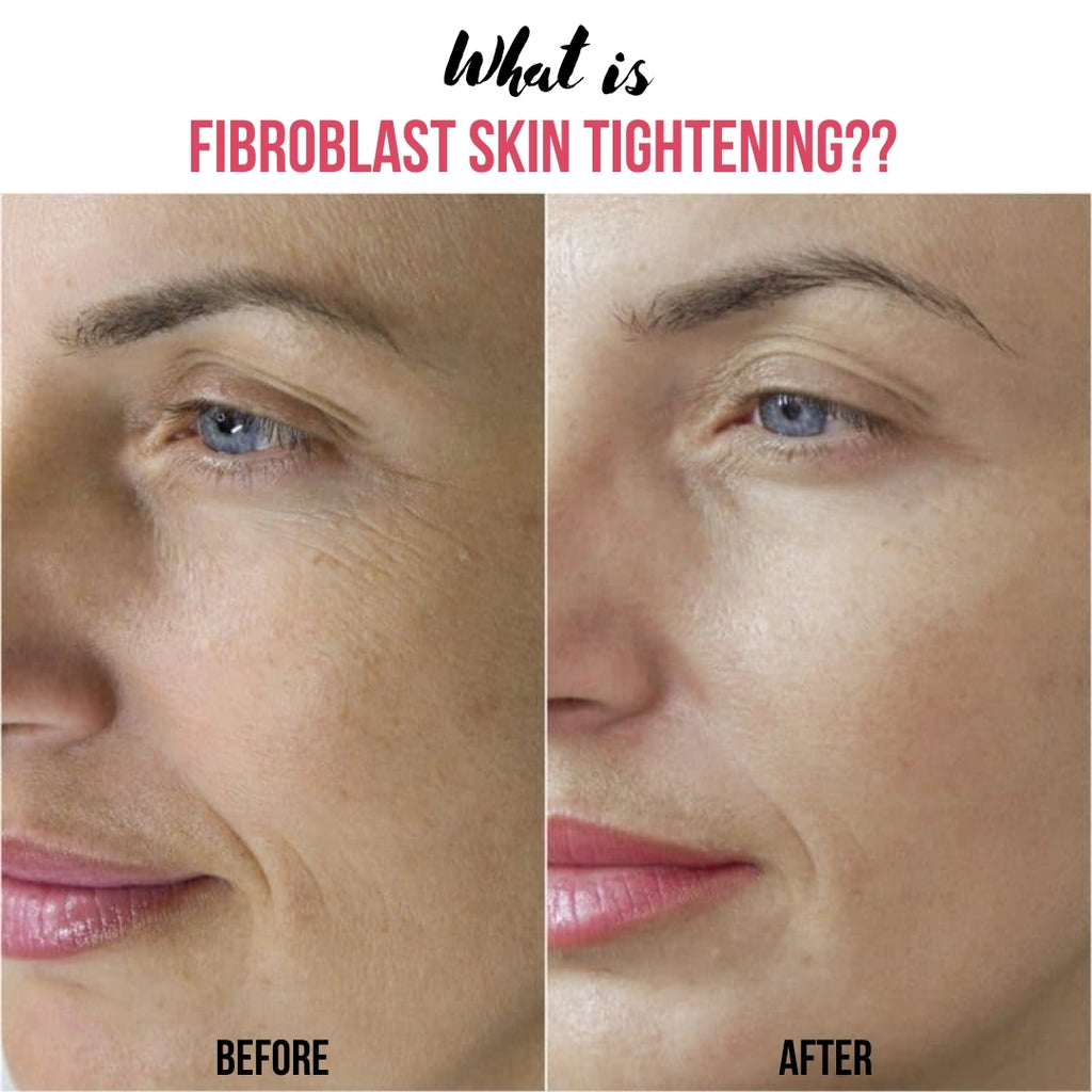 What is Fibroblast Plasma Skin Tightening?